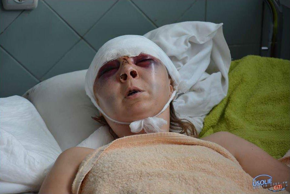 Из-за ревности: Жительница Мишелевки  стеклянной бутылкой разбила лицо своей сопернице