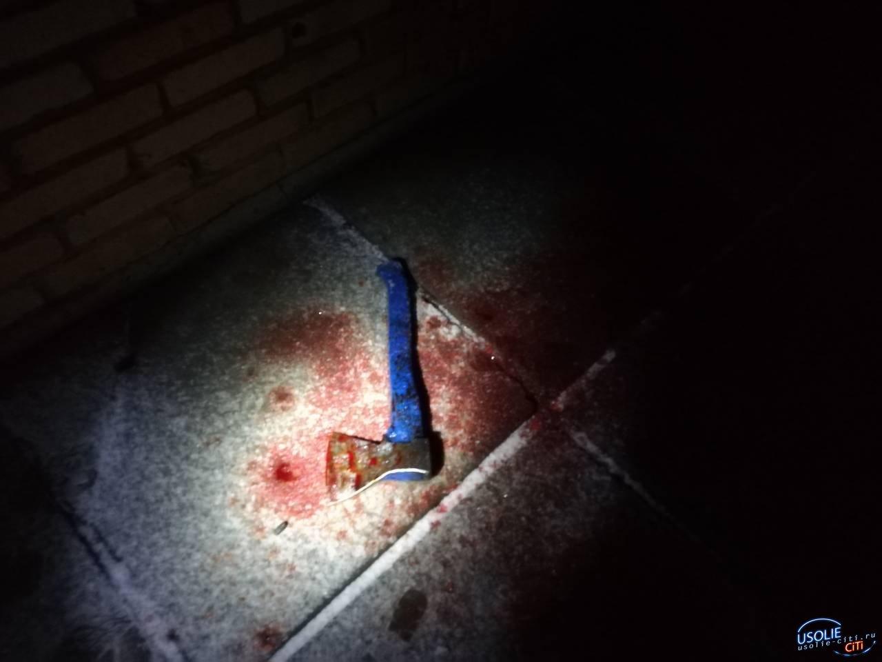 Топор против пистолета. В усольской больнице после криминальной разборки двое в тяжелом состоянии