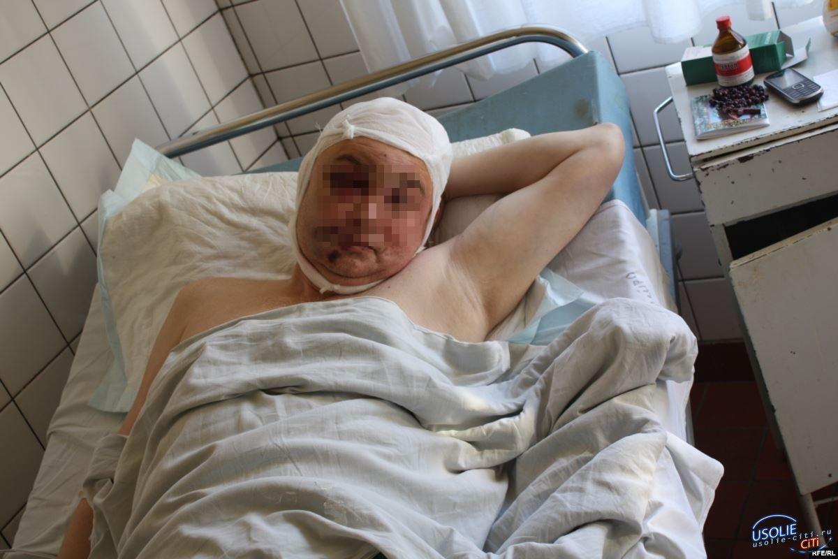 Ангарчанин в Усолье получил трубой по голове
