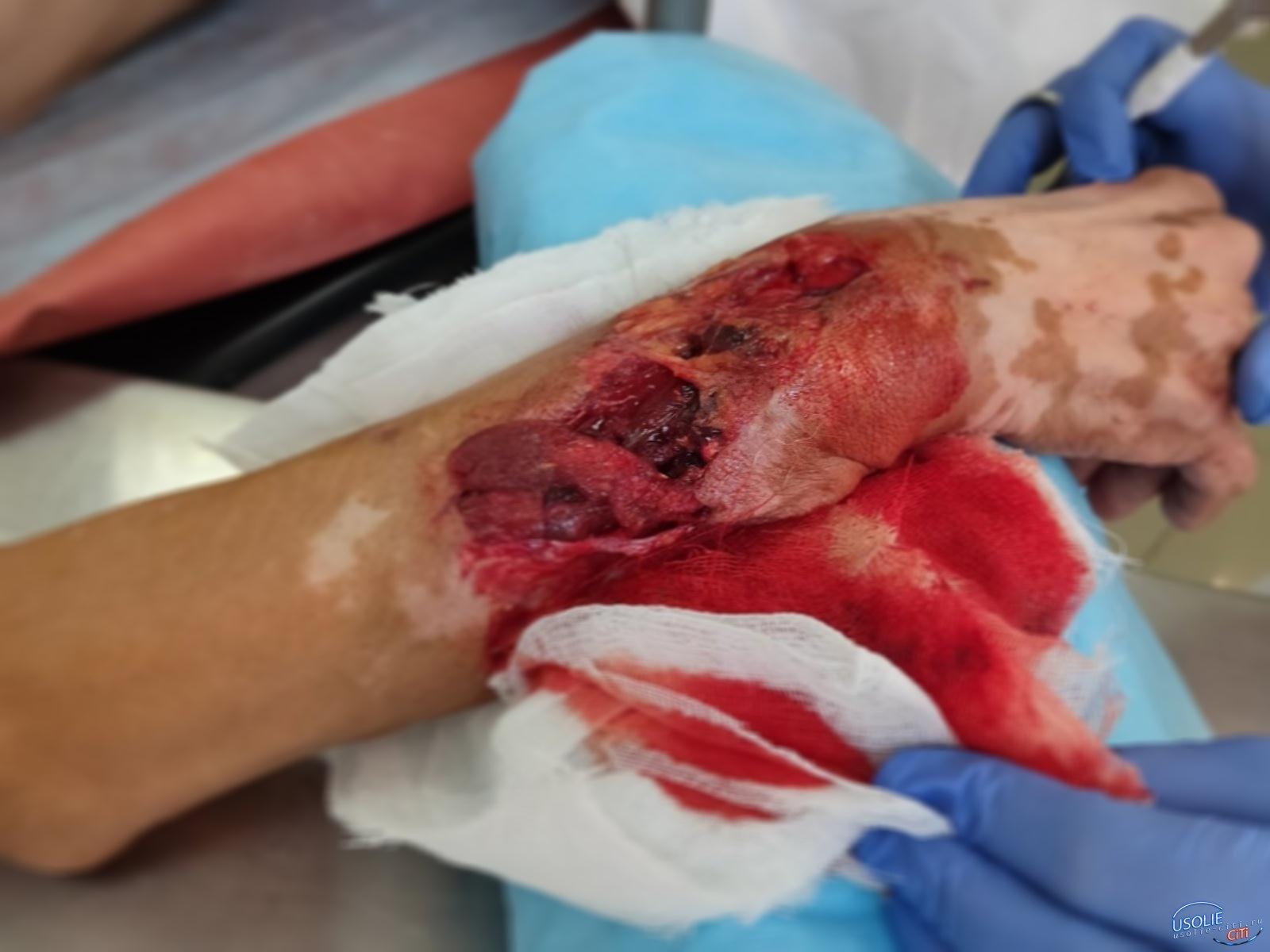Вырвала кусок человеческого мяса и съела:В Усолье собака изуродовала пенсионерку